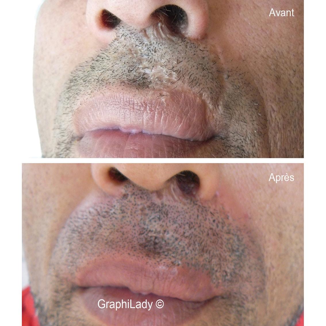 maquillage permanent cicatrice 02