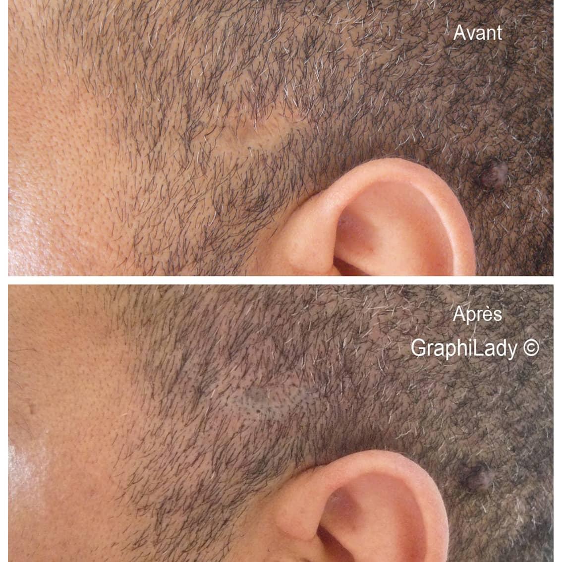 maquillage permanent cicatrice 03