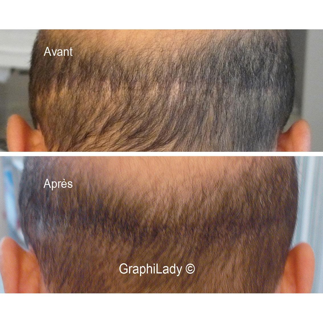 maquillage permanent cicatrice 05