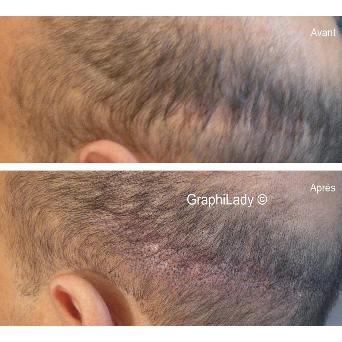 maquillage permanent cicatrice 08