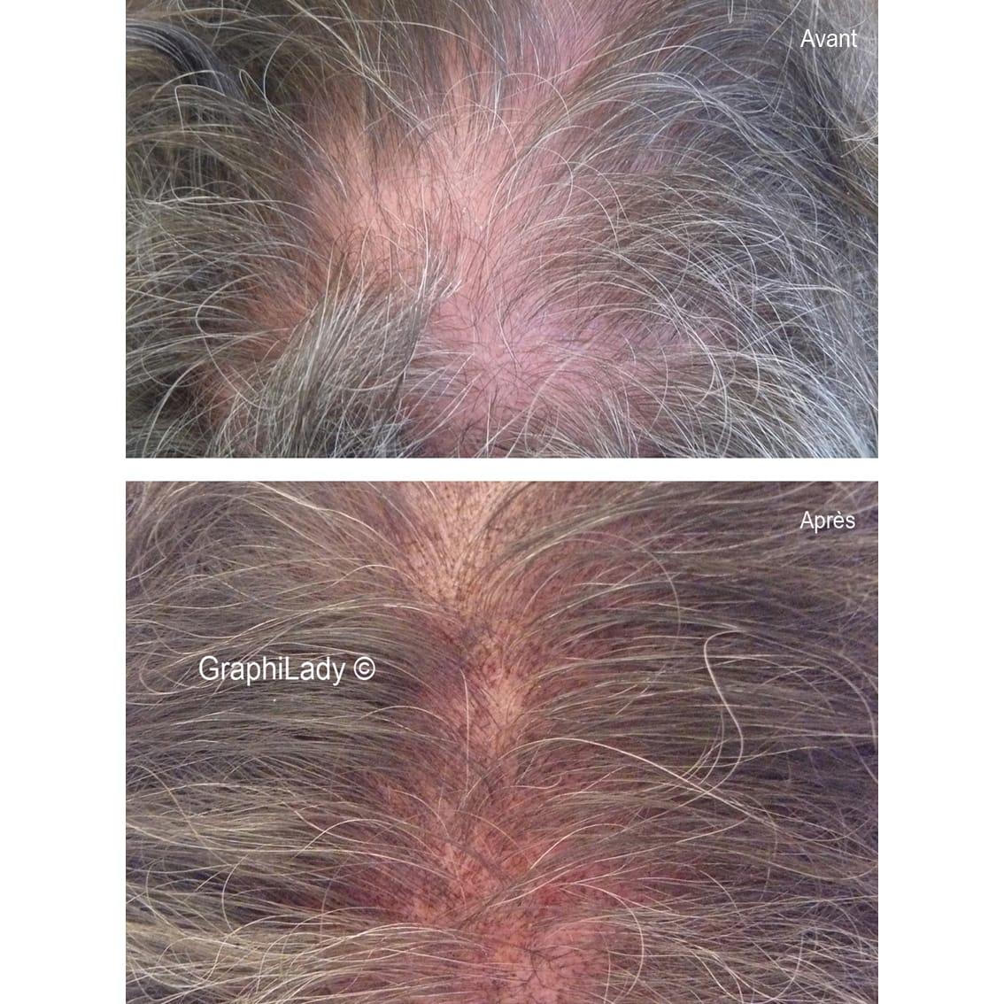 maquillage permanent Alopécie 02
